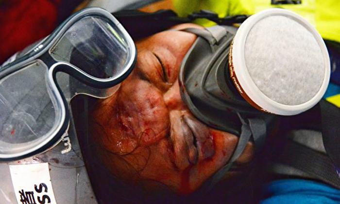 Ngày 29/9, hoạt động diễu hành liên kết toàn cầu phản đối ĐCSTQ đã diễn ra, một phóng viên bị thương ở đầu trong khi tác nghiệp