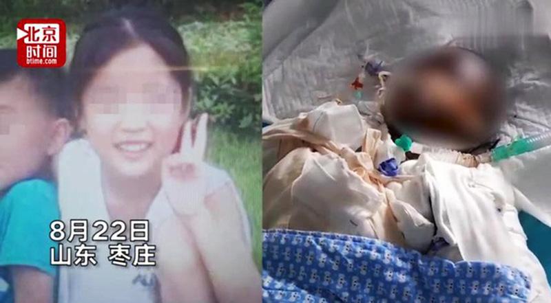 Bé gái 14 tuổi bị bỏng nặng và qua đời sau khi làm bỏng ngô theo clip trên mạng. (Ảnh qua phujnutoday)