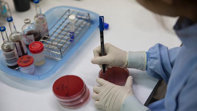 Chẩn đoán bệnh Whitmore chính xác phải dựa trên các xét nghiệm phân lập và định danh vi khuẩn trong mẫu bệnh phẩm máu, mủ, nước tiểu… (Ảnh qua vnexpress)
