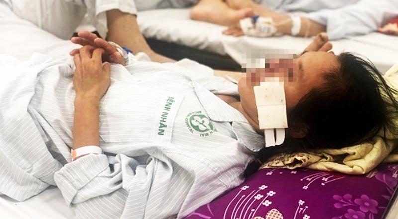 Bệnh nhân mắc bệnh whitmore được điều trị tại Bệnh viện Bạch Mai.