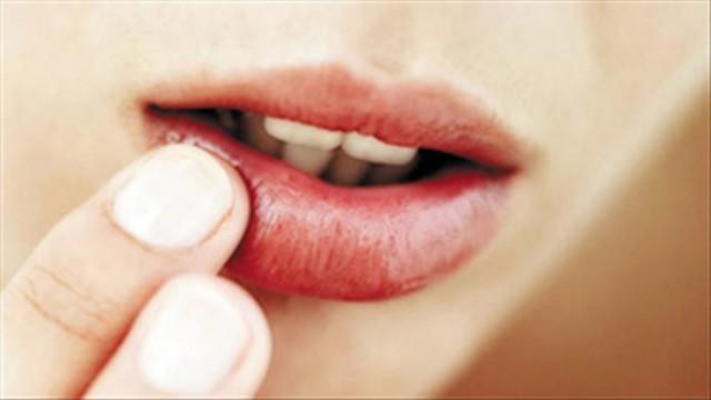 10 điều về đôi môi tiết lộ tình trạng sức khỏe của bạn