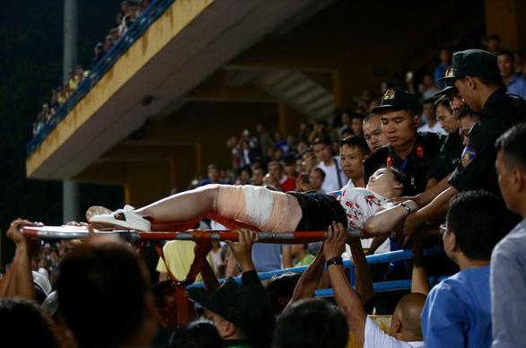 nữ cổ động viên bị trúng pháo sáng được đưa ra khỏi khán đài
