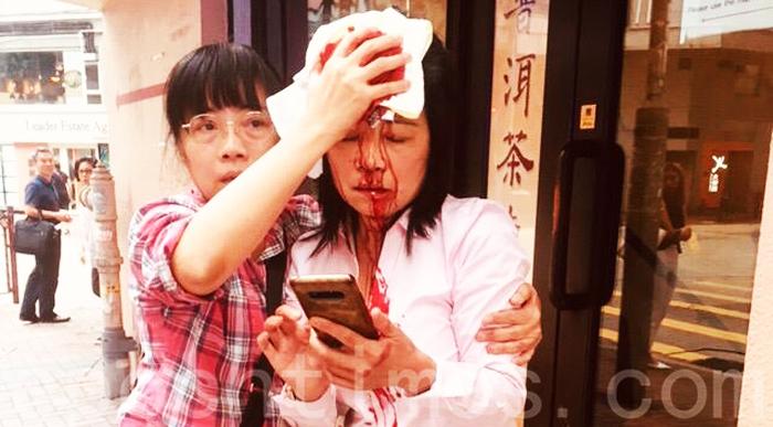Cô Liêu, nữ học viên Pháp Luân Công đã bị những kẻ lạ mặt bất ngờ tấn công, gây chảy máu đầu.