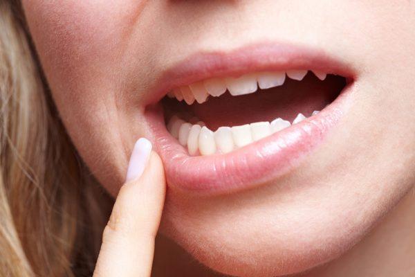 10 điều về đôi môi tiết lộ tình trạng sức khỏe của bạn - ảnh 3