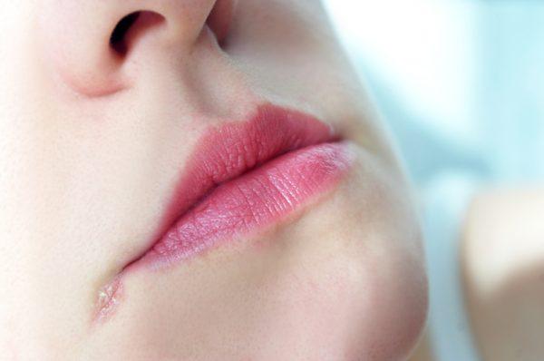 10 điều về đôi môi tiết lộ tình trạng sức khỏe của bạn - ảnh 6