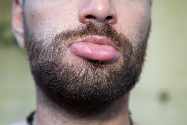 10 điều về đôi môi tiết lộ tình trạng sức khỏe của bạn - ảnh 2