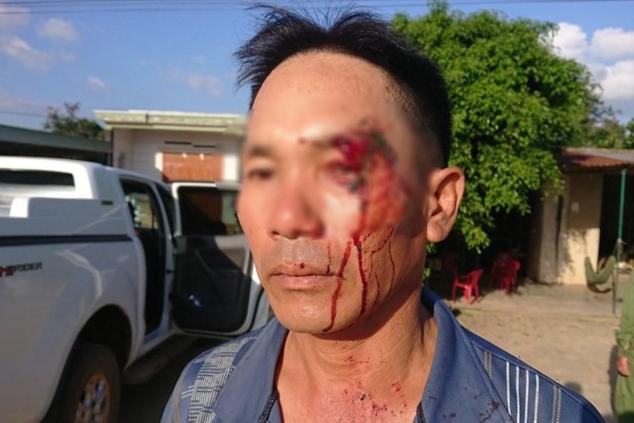 Ông Hôm bị đánh sau khi gặp PV tố cáo hành vi nhận hố lộ của cán bộ xã Elang.