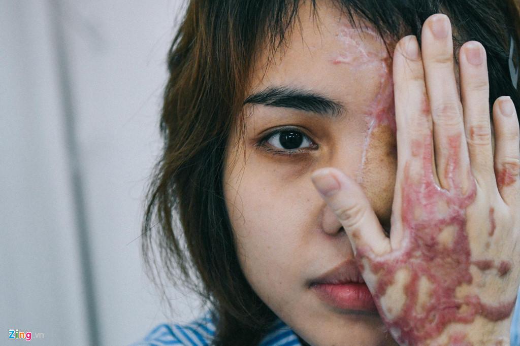 Vết thương của Vy cách đây hơn 3 tháng.