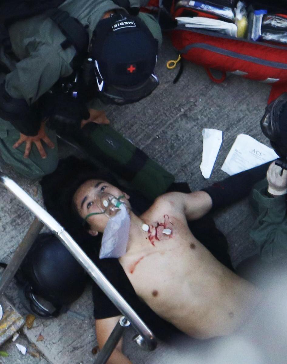Người biểu tình bị bắn đã không còn tỉnh táo, môi miệng nhợt nhạt.