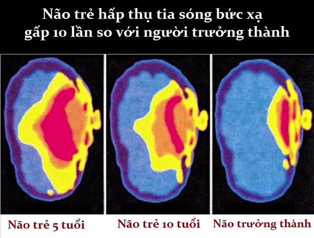 Não trẻ em khi hấp thụ tia sóng bức xạ.