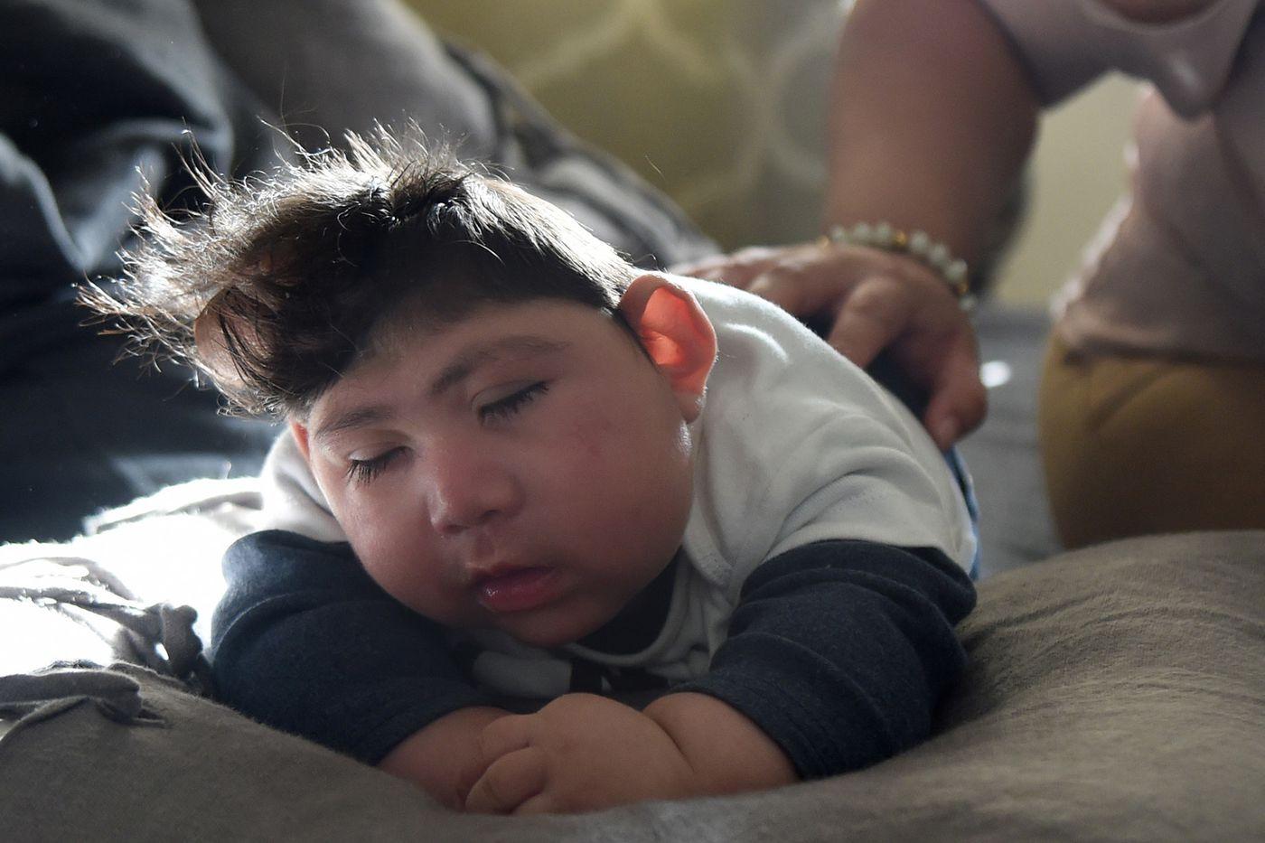 Kỳ diệu: Em bé mới sinh vẫn sống sót dù thiếu mất hộp sọ