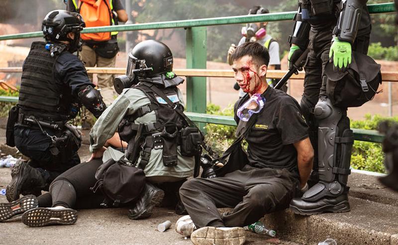 Tình hình Hồng Kông hiện nay là sự leo thang bạo lực không kiêng nể gì, ĐCSTQ vô pháp vô thiên không hề sợ thế giới lên án nữa.