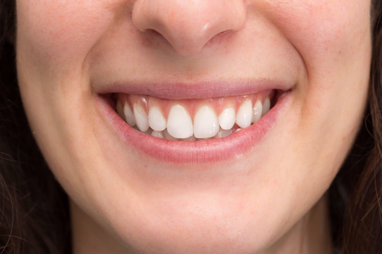 Nhìn răng đoán tính cách và khả năng lãnh đạo của bạn