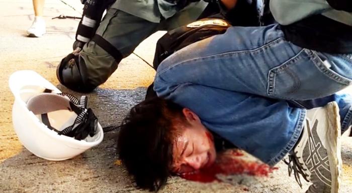 Cuộc khủng hoảng ở Hồng Kông đang dần mất kiểm soát, mà nguyên nhân là do sự lạm dụng bạo lực quá mức của cảnh sát.