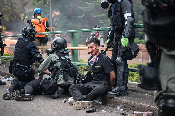 """Người biểu tình Hồng Kông bị cảnh sát """"nói tiếng phổ thông"""" đánh đập, uy hiếp xâm hại tình dục. (ảnh 2)"""