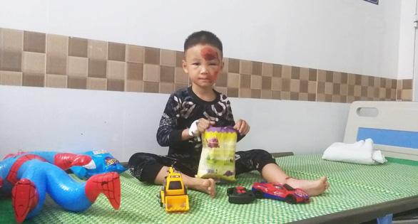 Bé Nguyễn Hải Nam bị đa chấn thương vùng mặt, đang được tiếp tục theo dõi tại Bệnh viện Trẻ em Hải Phòng. (Ảnh qua tuoitre)