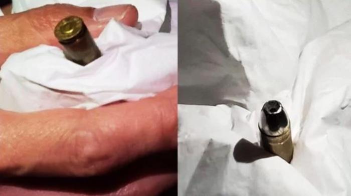 Có người dân Hồng Kông phát hiện loại vỏ đạn đã bị cấm trên toàn thế giới.
