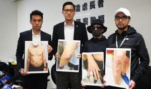 Nâng mức phạt 7 năm tù đối với 3 cảnh sát Hồng Kông tấn công người trong bệnh viện