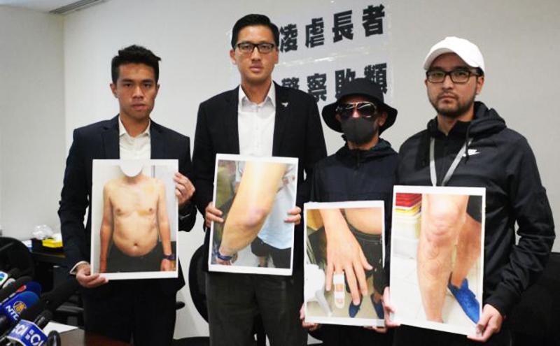 Các nghị viên phái dân chủ đưa những tấm hình bị thương của người bị hại ra trước công chúng trong một cuộc họp ngày 20/8.
