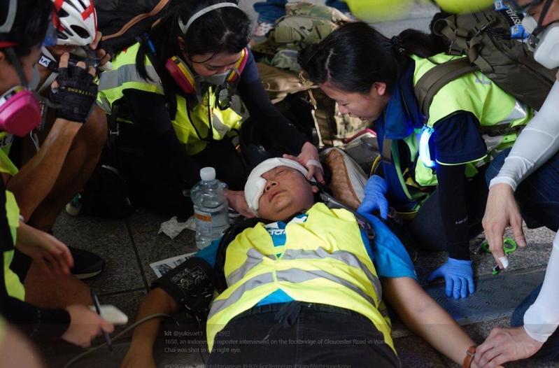 một nữ phóng viên quốc tịch Indonesia phỏng vấn ở Wan Chai, nghi ngờ bị cảnh sát bắn đạn cao su vào mắt phải và bị thương.