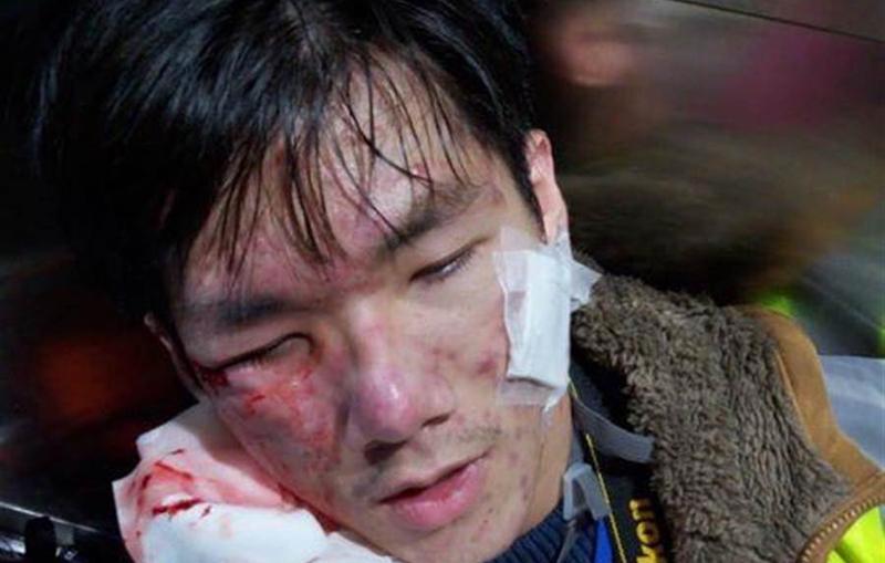Tại phố Portland, Vượng Giác lại có phóng viên bị bắn đạn hơi cay trúng mắt phải