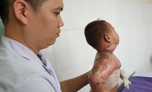 Ngã vào nồi lẩu, cháu bé 22 tháng tuổi bị bỏng nặng