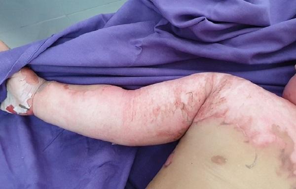 Ngã vào nồi lẩu, cháu bé 22 tháng tuổi bị bỏng nặng-2