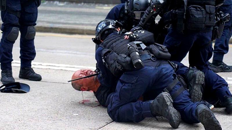Bác trai bị cảnh sát Hồng Kông hành hung chảy máu ròng ròng sau gáy (ảnh 1)