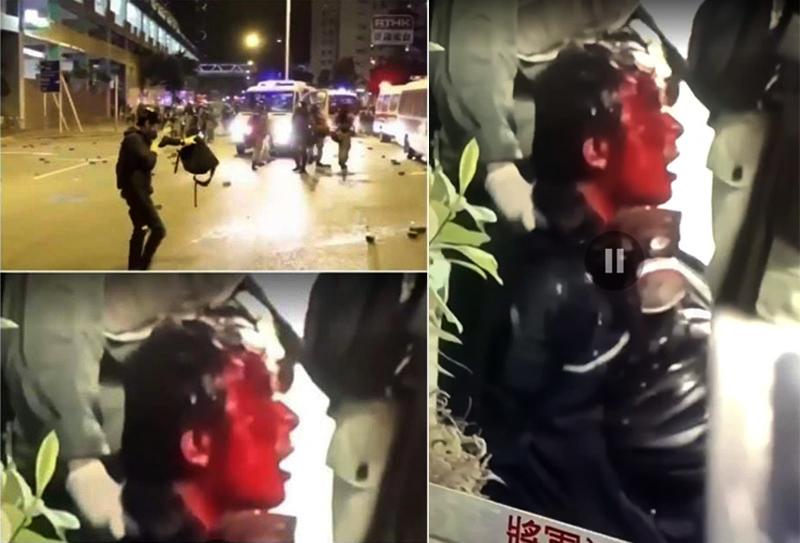 Cảnh sát Hồng Kông diễn trò tự ngã để đổ tội cho người biểu tình tấn công (ảnh 2)