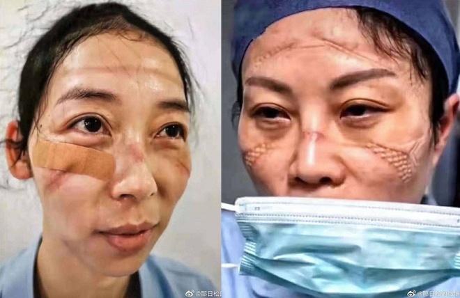 Nhiều bác sĩ khuôn mặt bị thâm tím những vết hằn sâu trên mặt, chứng minh họ đã phải mặc đồ bảo hộ trong thời gian rất lâu. (Ảnh: sina.)
