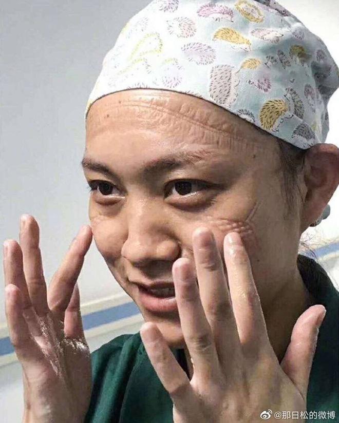Một nữ y tá vẫn tươi cười trước ống kính sau khi rời khỏi khu vực cách ly vào ngày 3/2 với đầy những vết hằn trên gương mặt. Ảnh: voc, sina