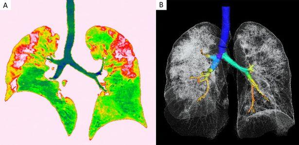 Tổn thương phổi (màu đỏ, trái) và hình ảnh 3 chiều của phổi và khí quản (phải) (Ảnh: RSNA)