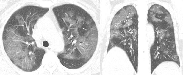 Một phụ nữ 54 tuổi bị viêm phổi nặng Covid-19 sau khi đến Vũ Hán (Ảnh: RSNA)