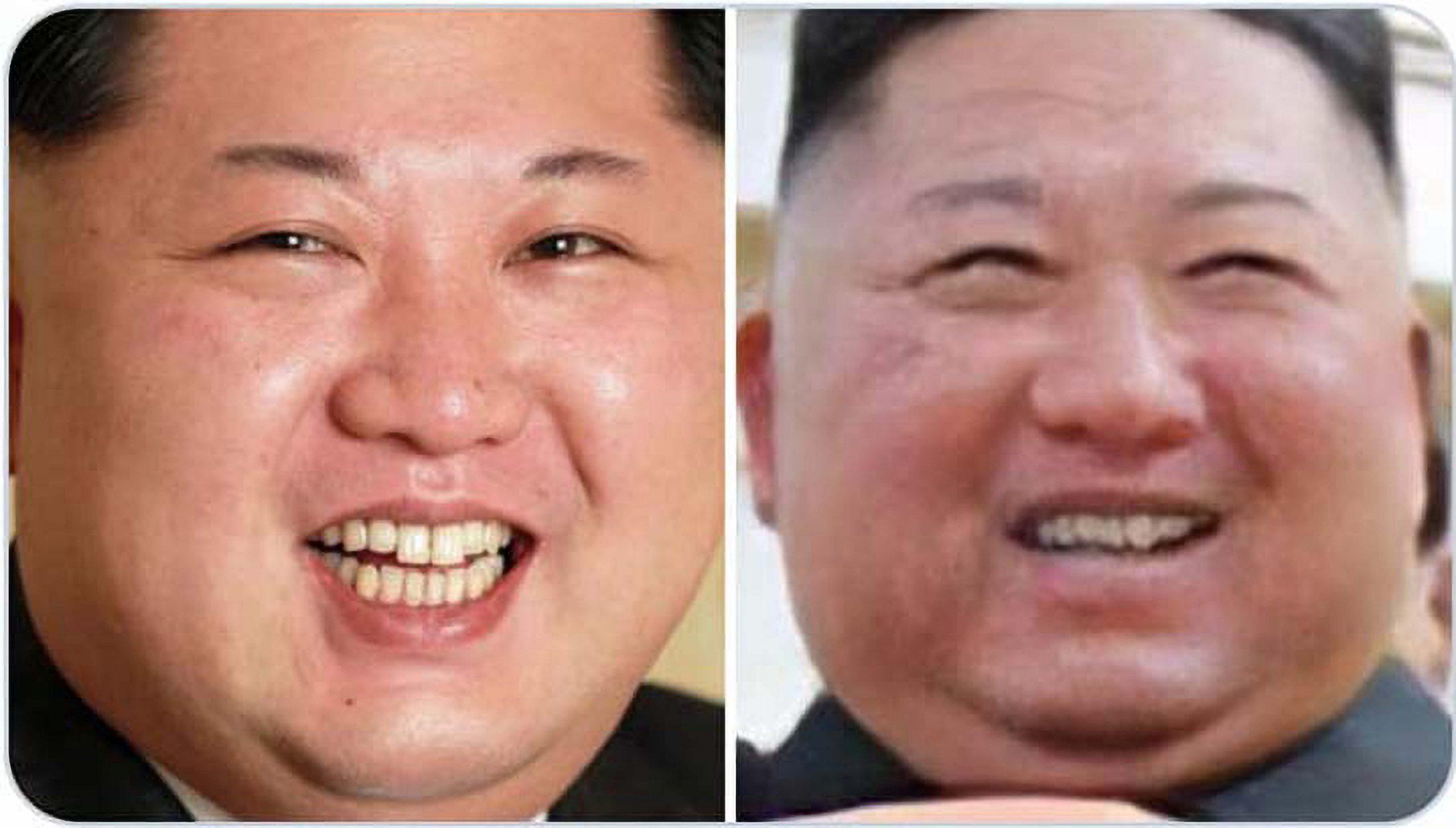 Hàm răng của Kim Jong-un xuất hiện ngày 1/5 (bên phải) khác nhiều so với trước đó. (Ảnh: NTDTV)