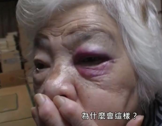 Đôi mắt bị bầm tím không rõ nguyên nhân.