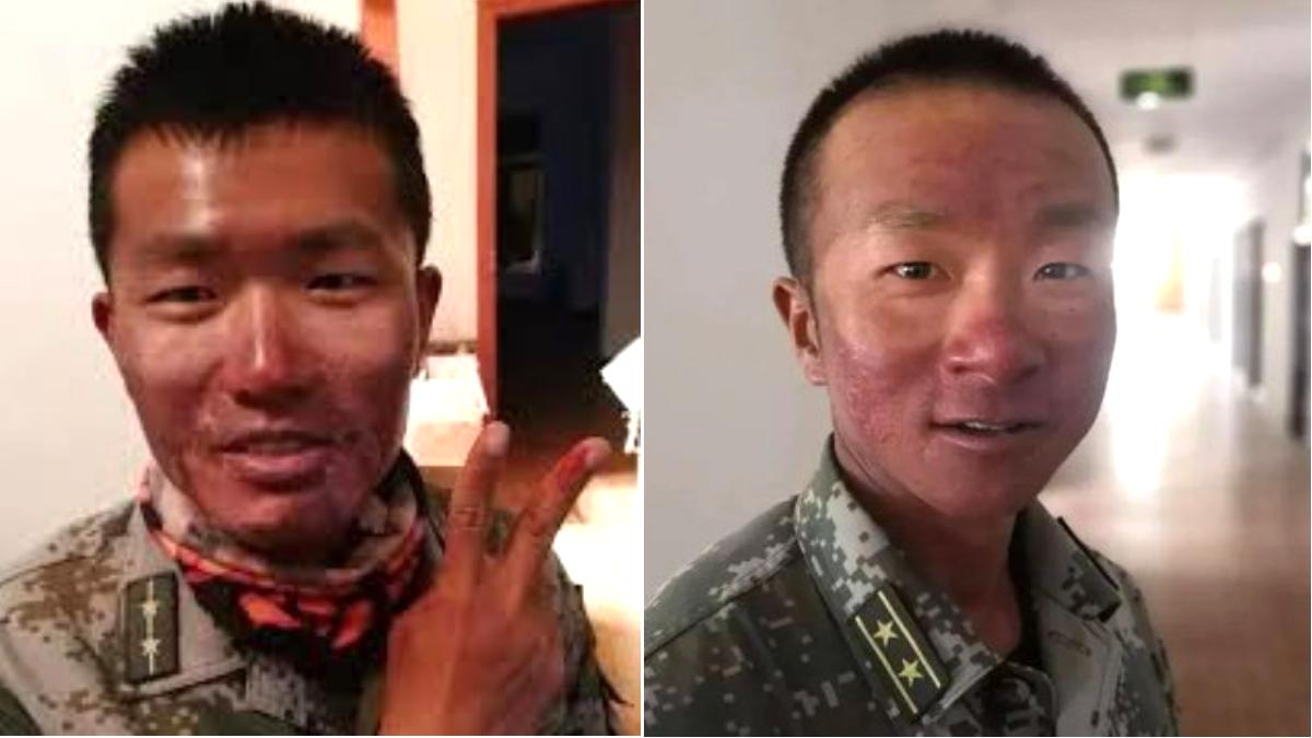 Không có đồ phòng hộ cơ bản, lính biên phòng Trung Quốc bị tia cực tím làm bỏng nặng  (ảnh 1)
