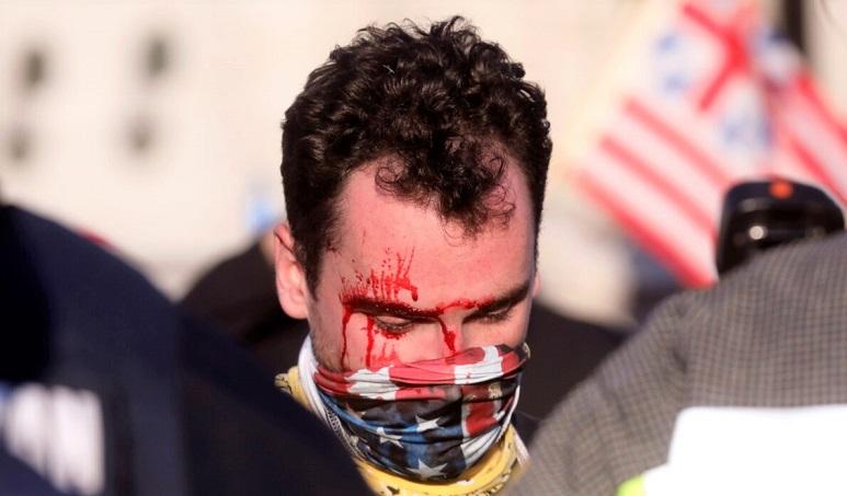 """Một người đàn ông che khuôn mặt bị thương do hững người chống Trump tấn công khi tham gia vào cuộc tuần hành """"Ngăn chặn việc đánh cắp""""  cuộc bầu cử vào ngày 14/11/ 2020"""