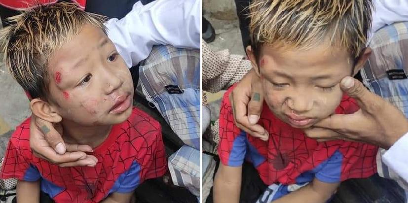 Người biểu tình Myanmar không lùi bước trước súng, bắt bớ và bạo lực