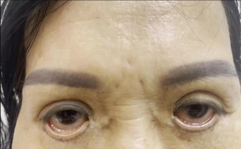 Ám ảnh đôi mắt 'trợn ngược' của người phụ nữ sau khi cắt mí tại tiệm spa