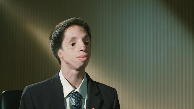 """Nhà khoa học Phạm Đức Chinh: """"Hãy xem tôi là người bình thường, đừng nghĩ tôi là người khuyết tật vươn lên"""""""