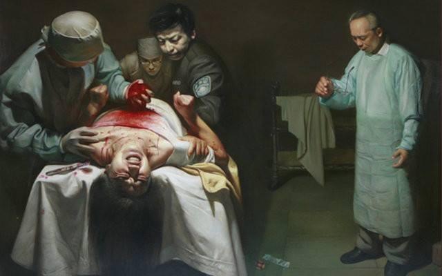 mổ cướp nội tạng