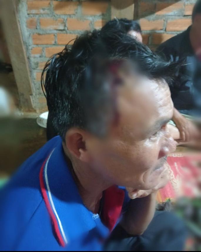 Một người dân bị thương ở đầu. (Ảnh qua NLD)